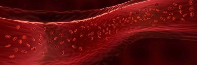 New Evidence Suggests COVID 19 May Actually Be a Blood Vessel Disease
