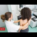 Coronavirus: the cancer patients suffering serious delays in treatment   BBC News